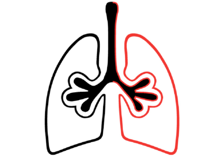 Asthma+overview