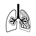 Fibrosis1